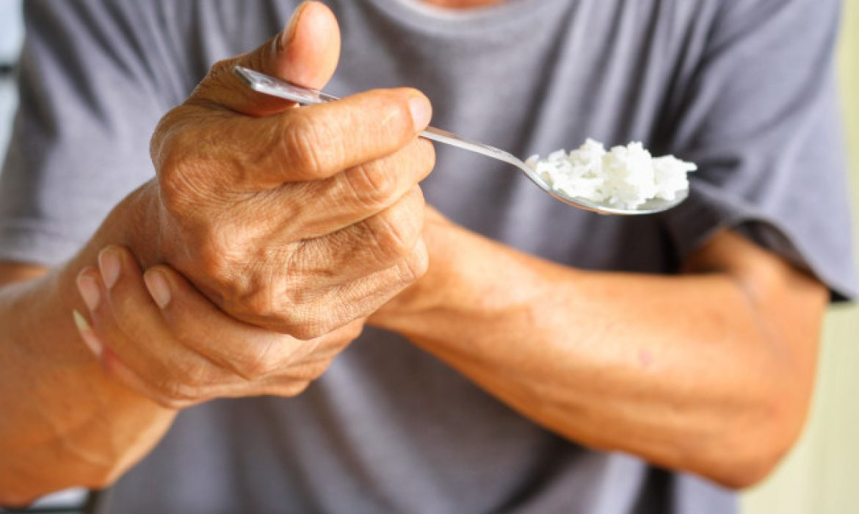 Acupunctura in boala Parkinson