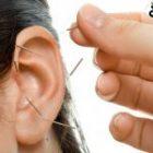 Acupunctura in anxietate si atacuri de panica